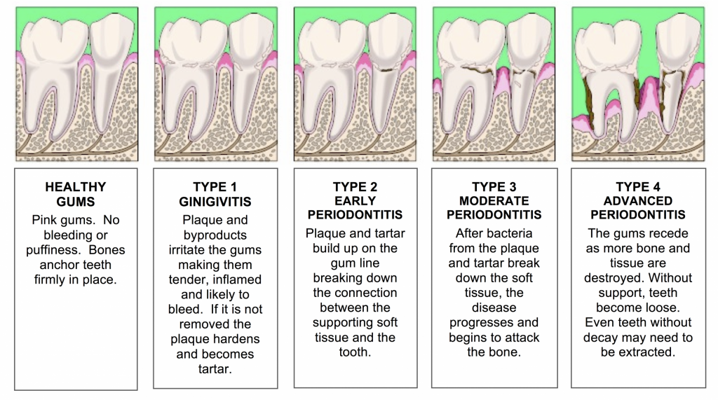 Periodontal-Disease-1024x571
