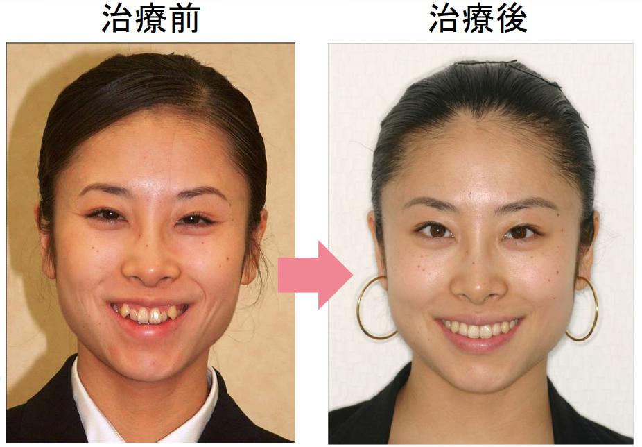 歯 の 矯正 値段