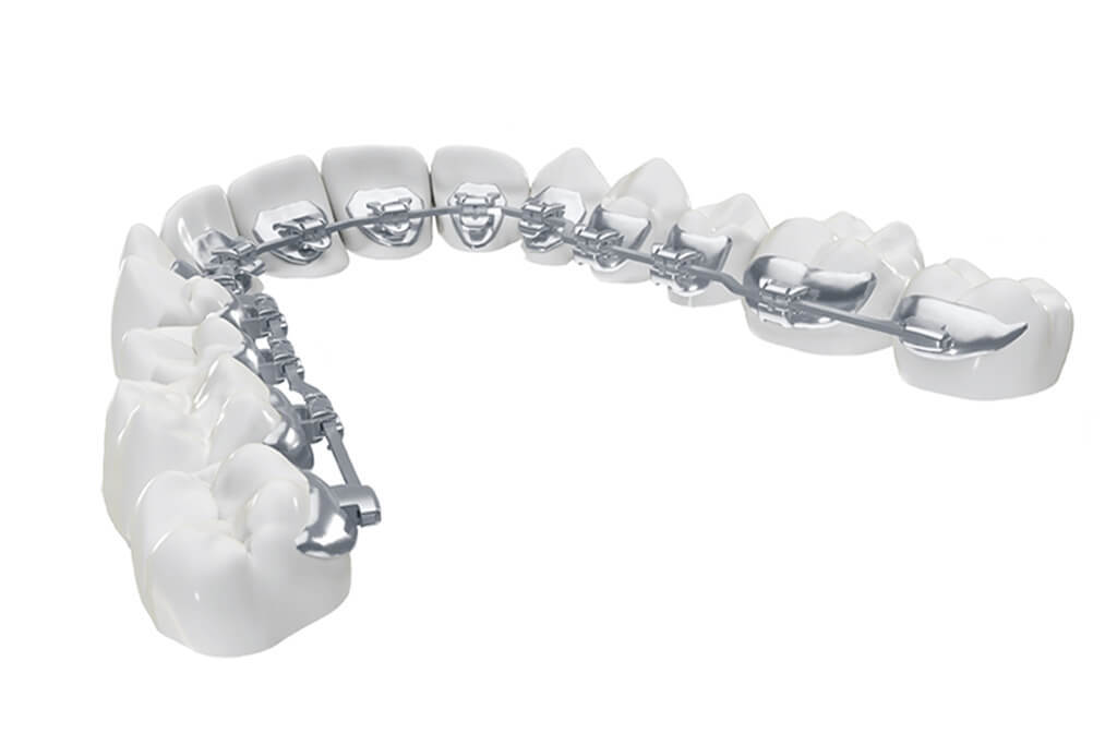 orthodontic-img02